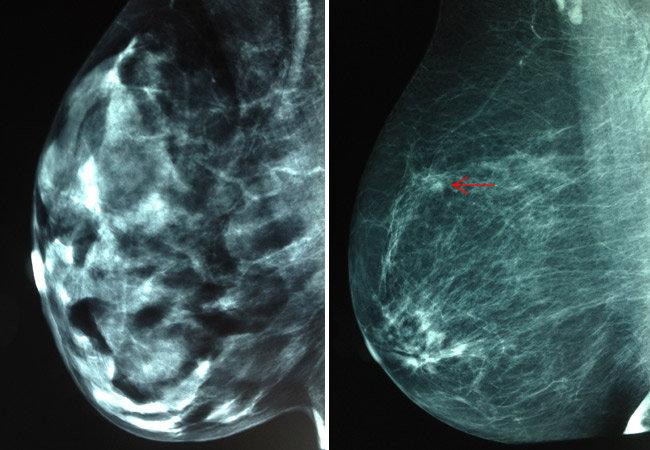 dense breast comparison