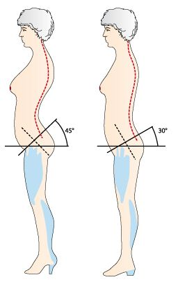 heel height effect on posture